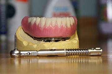 denturologiste et prothèse