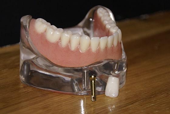 implant dentaire saint-jerome