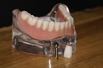 prothèse dentaire sur implants