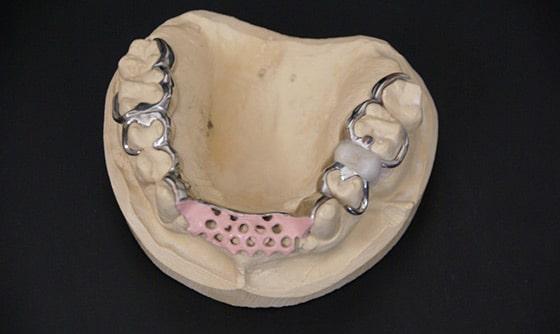 prothèse partielle en métal
