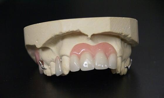 prothèses partielles en acrylique