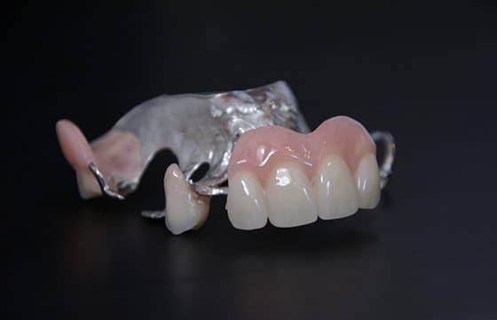 prothèses partielles