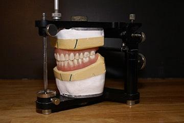 prothèse semi-précision